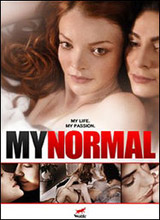 Watch My Normal